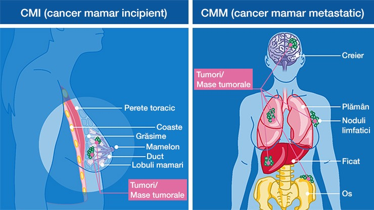 cancer mamar stadiu avansat)